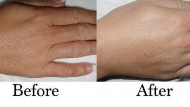 Photo of روش استفاده از وازلین برای از بین بردن موهای زائد بدن